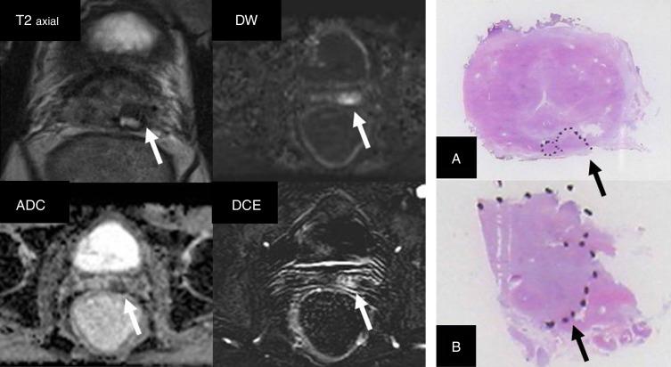 protocolo de resonancia magnética de la glándula prostática