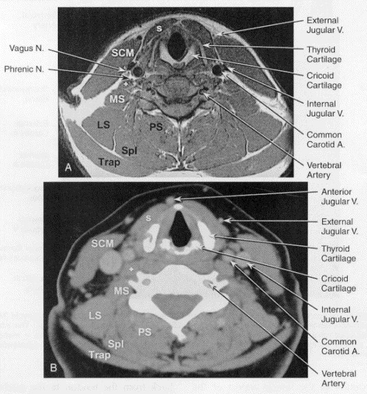 Normal Anatomy Of The Neck With Ct And Mr Imaging Correlation