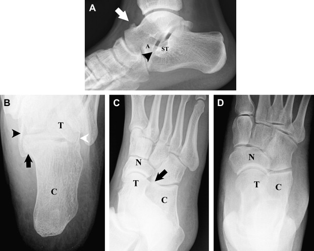 Imaging of Tarsal Coalition - ScienceDirect
