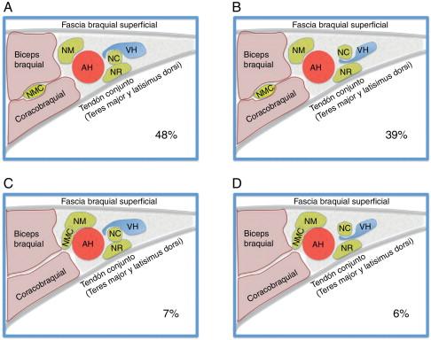 Bloqueo axilar ecoguiado: variaciones anatómicas de la disposición ...