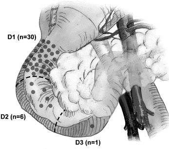 ami méregtelenítő kezelést jelent a helmintikus betegség példái