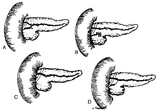 Pancreas Divisum: Endoscopic Therapy - ScienceDirect