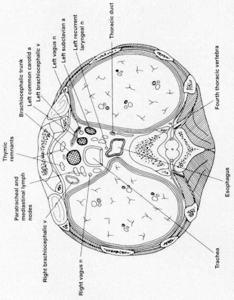 Embryology And Surgical Anatomy Of The Mediastinum With Clinical