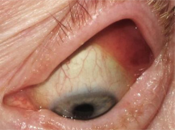Plica Semilunaris Infection