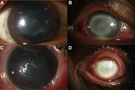 Ocular parasitoses: A comprehensive review - ScienceDirect