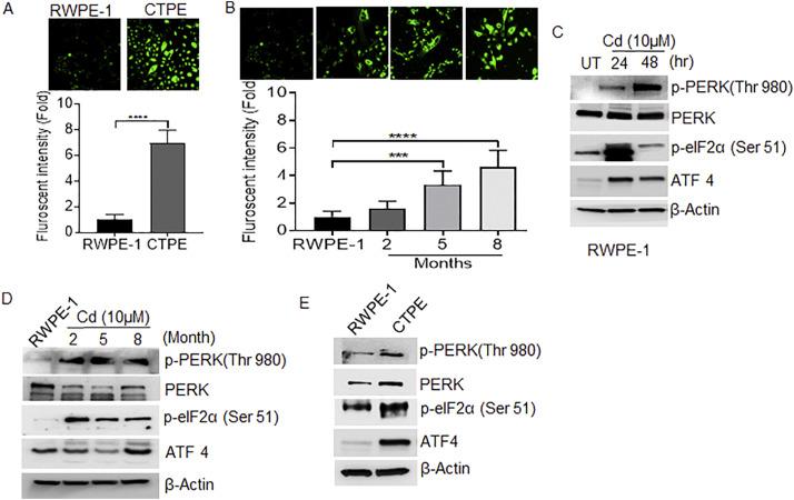 Induction of endoplasmic reticulum stress might be