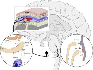 botuline toxine migraine