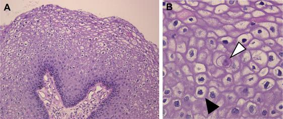 a trichocephalus földrajzi eloszlása papillomavírus előtti rákos elváltozás