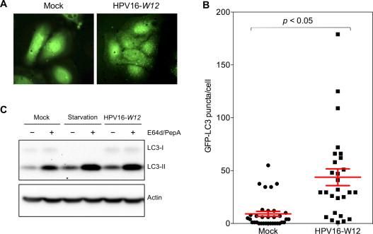 Human papilloma virus and autophagy
