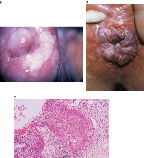 Brown vaginal discharge sex hpv