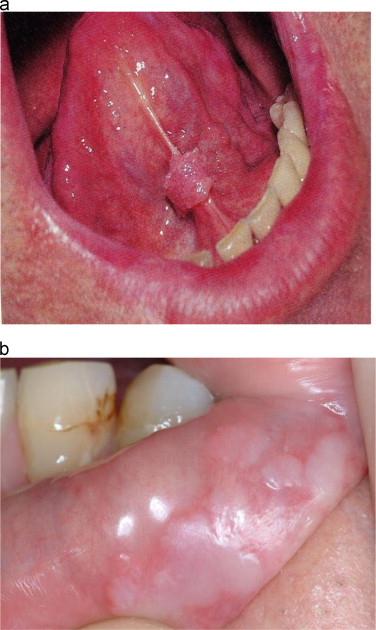 Sexually transmitted diseases pictures hpv on tongue