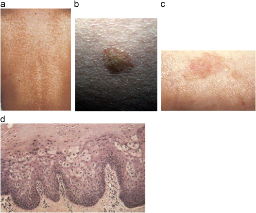 papilloma skin lesion)