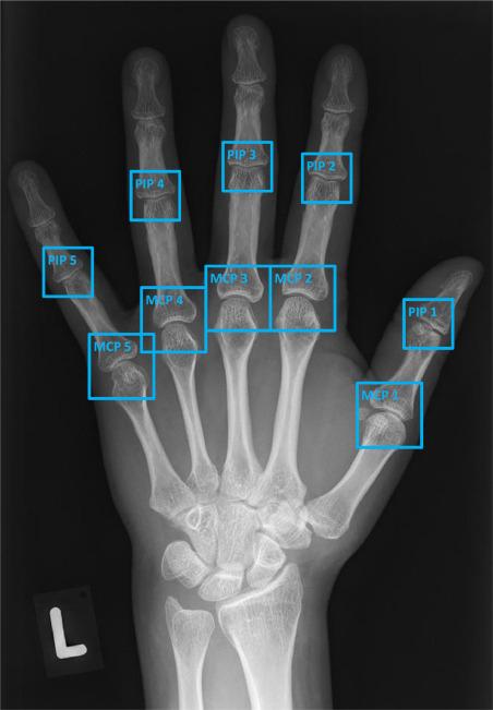 Bone erosion scoring for rheumatoid arthritis with deep