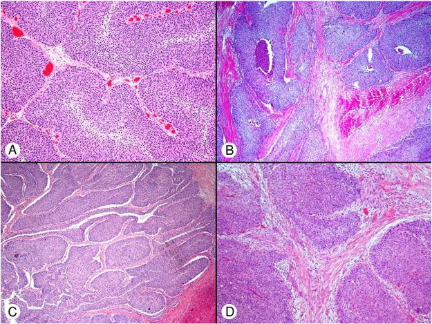 papillary growth of urothelial tumor vacuna giardia aplicacion