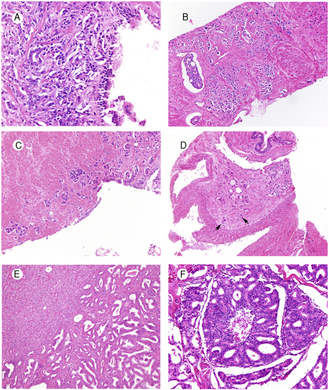 Adenocarcinoma de próstata de Gleason 3 4 5 6 7 8 9