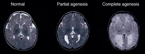agenesia de cuerpo calloso e hidrocefalia