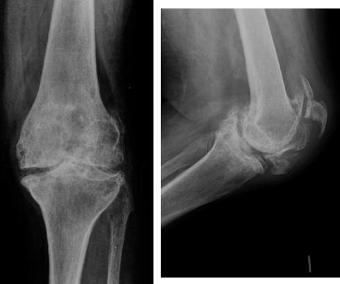Artroplastia de rodilla en el contexto de una fractura de rótula en ...