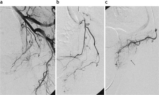 anatomía de la próstata vascular