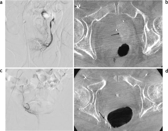 hipertrofia prostática no nodular benigna con síntomas del tracto inferior