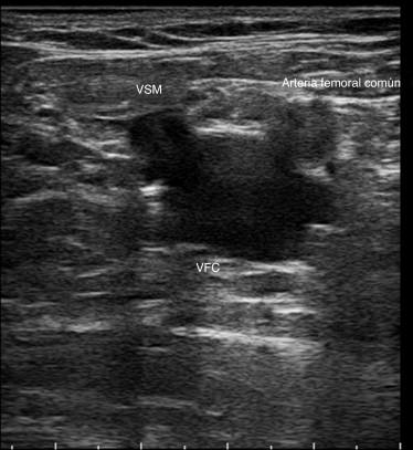 Examen Doppler de la insuficiencia venosa de miembros inferiores ...