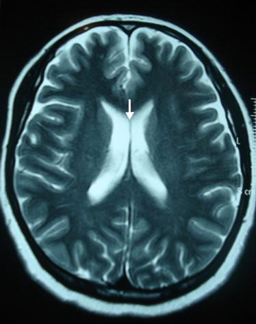 agenesia del septum pellucidum cord