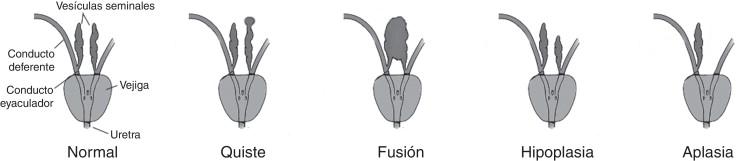 que funcion cumple la vesicula seminal y la prostata