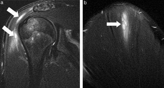Utilidad de la resonancia magnética en el diagnóstico de lesiones ...