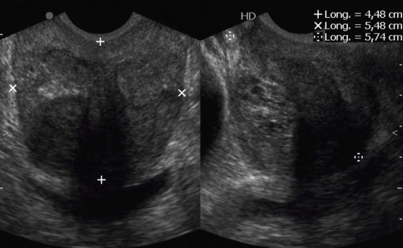biopsia de próstata hasta los 2 años