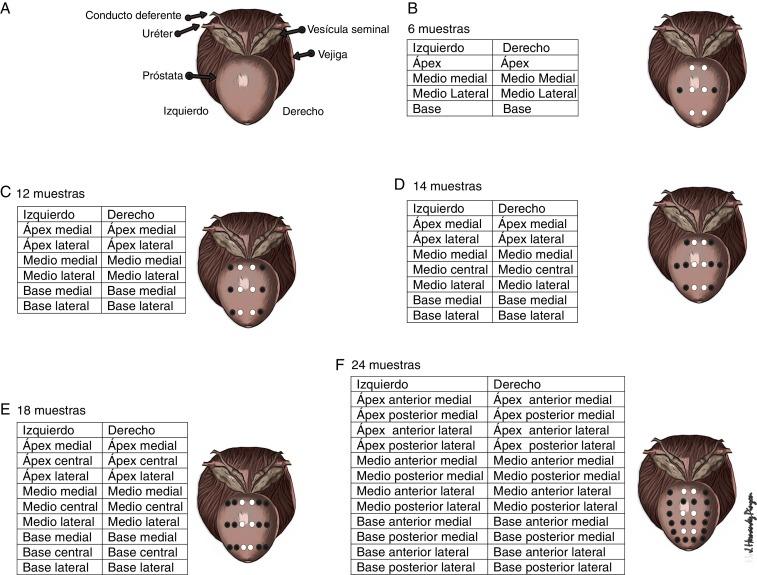 biopsia prostata 2 13 cores 3