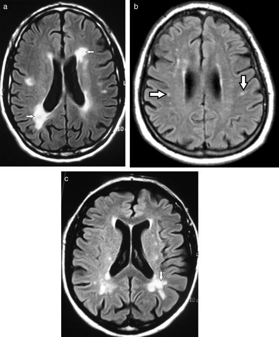 radiología microvascular isquémica crónicas