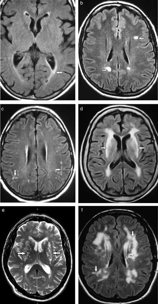 Presión arterial y lesiones cerebrales de la sustancia blanca