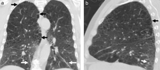 Opacidades en vidrio esmerilado hipertensión pulmonar