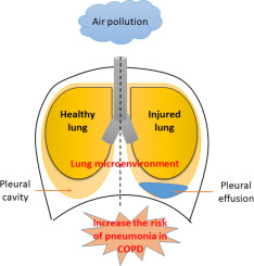Chronic obstructive pulmonary disease patients have a higher