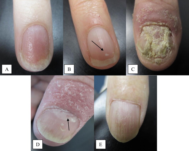 nail involvement in psoriasis)