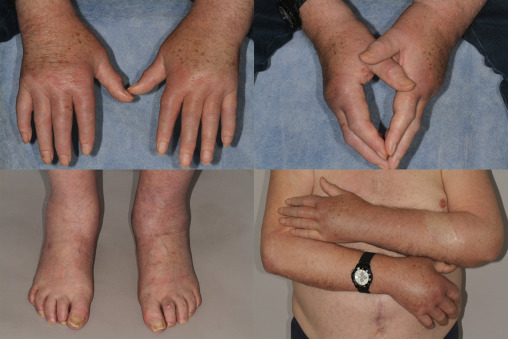 Remitting seronegative symmetrical synovitis with pitting edema ...