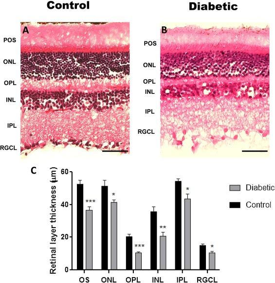 high fat diet retina
