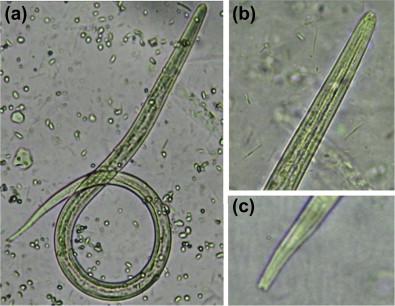 Strongyloidiasis teniasis, Helminths T solium reggel rossz lehelet és keserűség