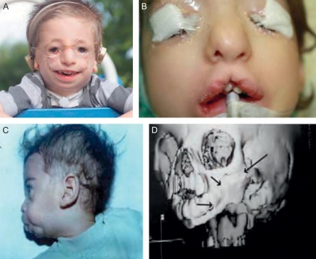 Typical craniofacial anomalies.
