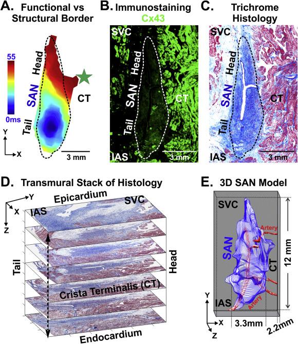 Human sinoatrial node structure: 3D microanatomy of sinoatrial ...