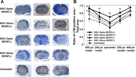 Biomaterials used in stem cell therapy for spinal cord