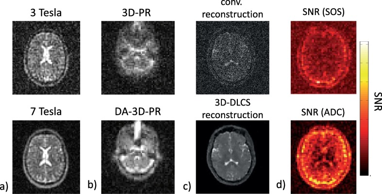 Pros and cons of ultra-high-field MRI/MRS for human