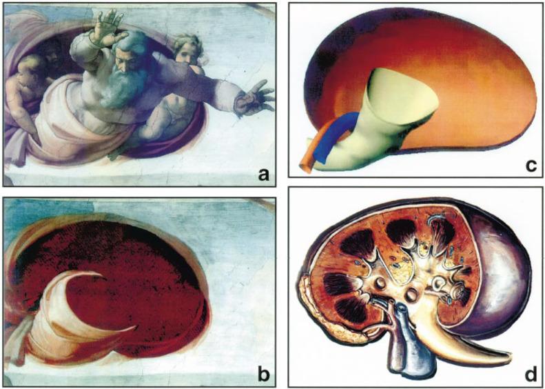 Michelangelo Art Anatomy And The Kidney Sciencedirect