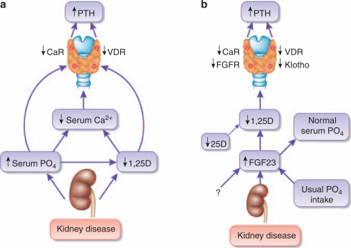 fgf23 or pth which comes first in ckd sciencedirect