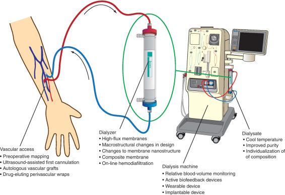 Novel techniques and innovation in blood purification: a