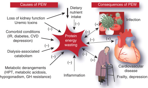 Prevention And Treatment Of Protein Energy Wasting In Chronic Kidney Disease Patients A Consensus Statement By The International Society Of Renal Nutrition And Metabolism Sciencedirect