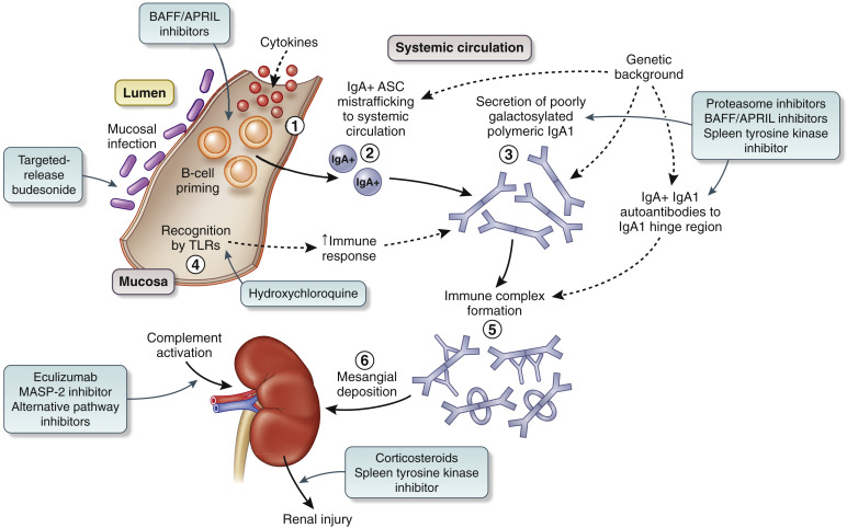 Management and treatment of glomerular diseases (part 1