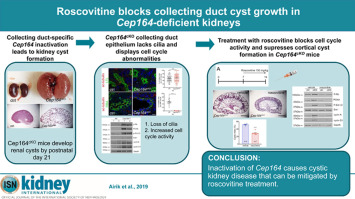 Roscovitine blocks collecting duct cyst growth in Cep164