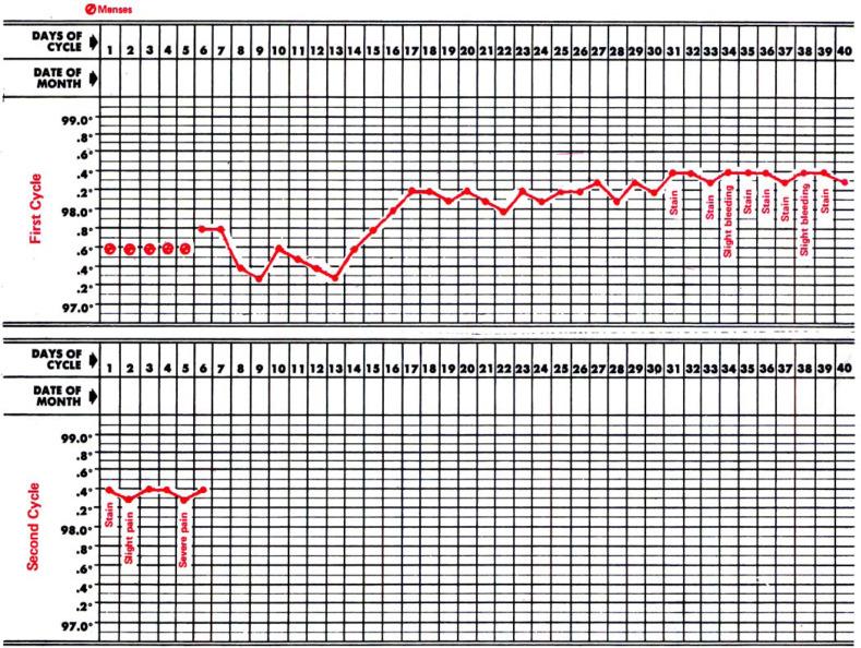 Basal Body Temperature Record: A Multipurpose Diagnostic