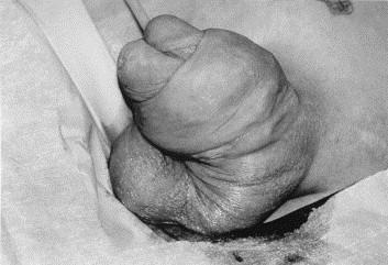 Vaseline penis