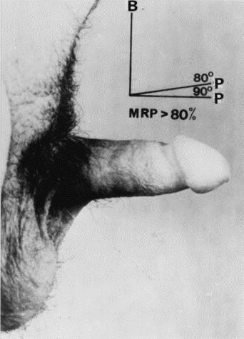 Three-year outcome of a progressive treatment program for erectile